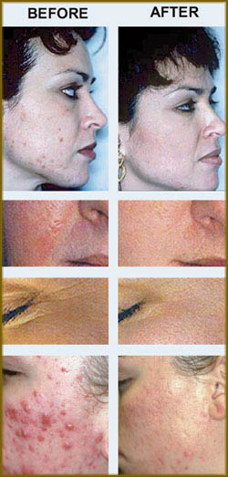 several before and after photos of rosacea treatments