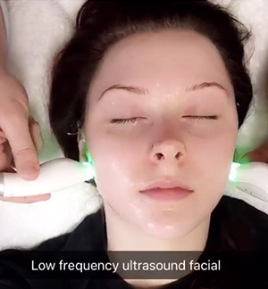 woman having a low frequency ultrasound facial treatment done